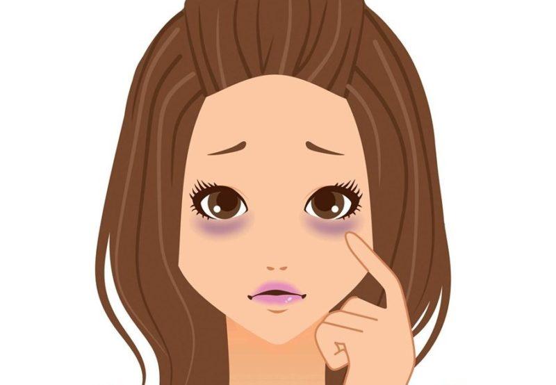 الهالات السوداء تحت العين أسبابها وعلاجها باستخدام كريم واقي الشمس