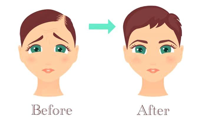 علاج الشعر الخفيف بسيروم الإشراق الأصلي