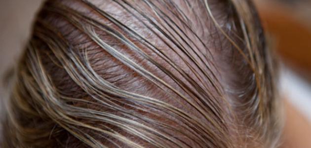 علاج الشعر الخفيف0