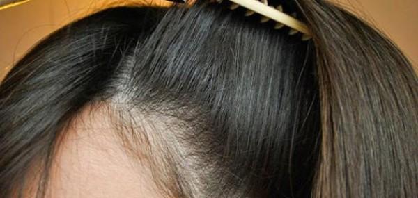 لمنع تساقط الشعر