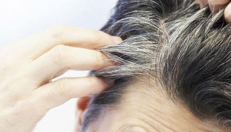 أهم الوصفات الطبيعية للقضاء على مشكلة الشعر الأبيض